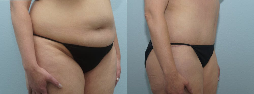 Tummy Tuck Gallery - Patient 49150804 - Image 2
