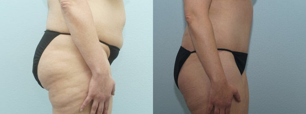 Tummy Tuck Gallery - Patient 49150804 - Image 3