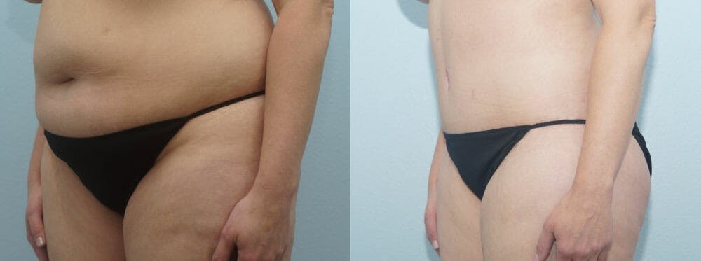 Tummy Tuck Gallery - Patient 49150804 - Image 4