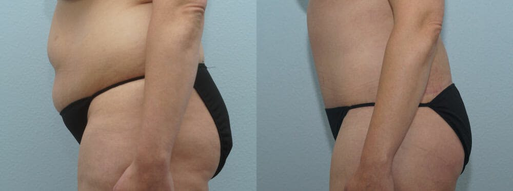 Tummy Tuck Gallery - Patient 49150804 - Image 5