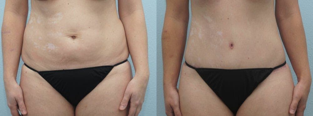 Tummy Tuck Gallery - Patient 49150805 - Image 1