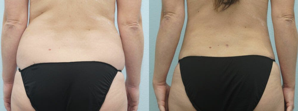 Tummy Tuck Gallery - Patient 49150805 - Image 2
