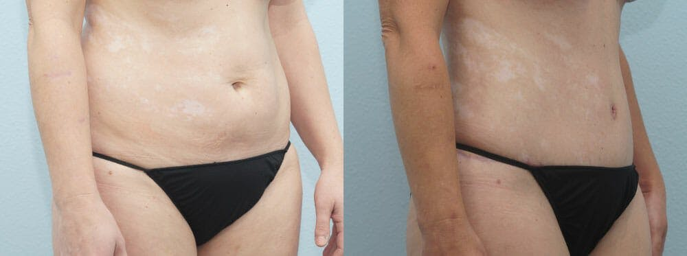 Tummy Tuck Gallery - Patient 49150805 - Image 3