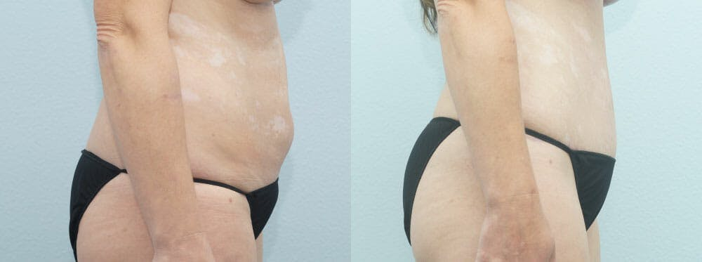 Tummy Tuck Gallery - Patient 49150805 - Image 4