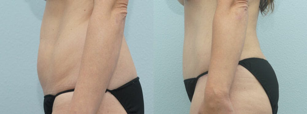 Tummy Tuck Gallery - Patient 49150805 - Image 5