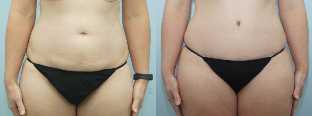 Tummy Tuck Gallery - Patient 49150807 - Image 1