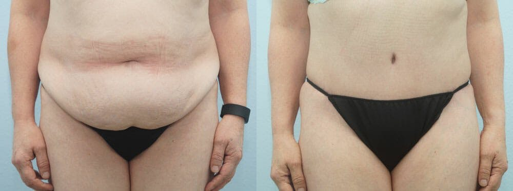 Tummy Tuck Gallery - Patient 49150808 - Image 1