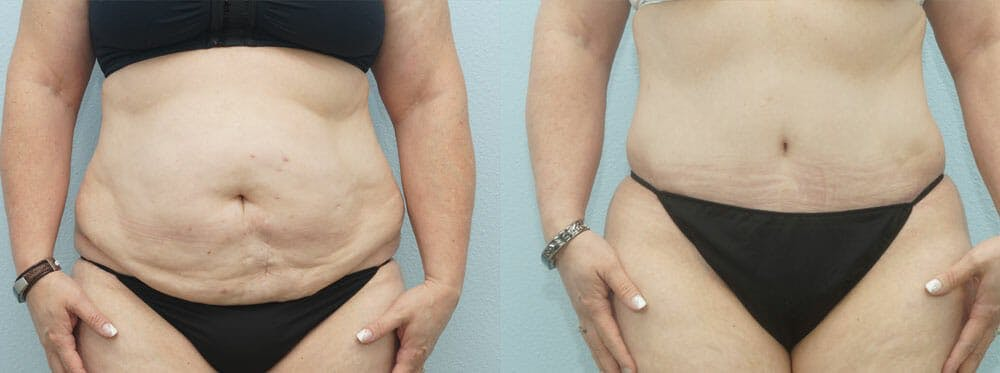 Tummy Tuck Gallery - Patient 49150809 - Image 1