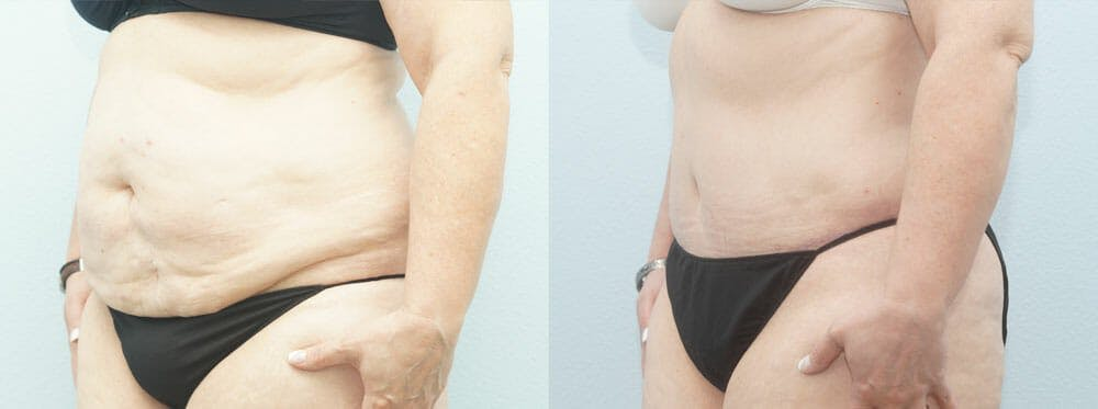 Tummy Tuck Gallery - Patient 49150809 - Image 2