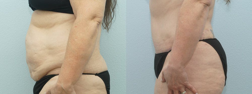 Tummy Tuck Gallery - Patient 49150809 - Image 3