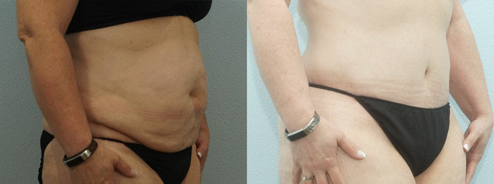 Tummy Tuck Gallery - Patient 49150809 - Image 4
