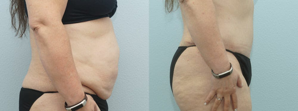 Tummy Tuck Gallery - Patient 49150809 - Image 5