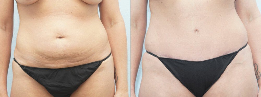 Tummy Tuck Gallery - Patient 49150811 - Image 1