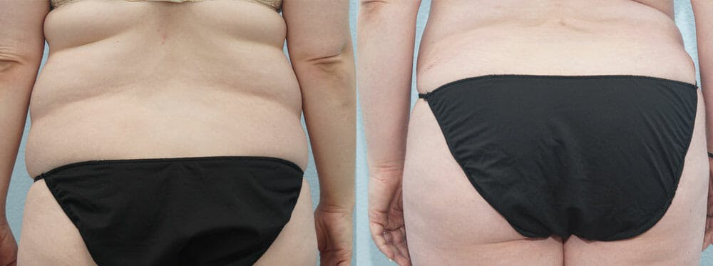 Tummy Tuck Gallery - Patient 49150812 - Image 2