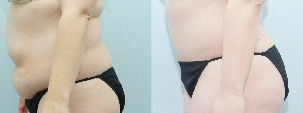 Tummy Tuck Gallery - Patient 49150812 - Image 3
