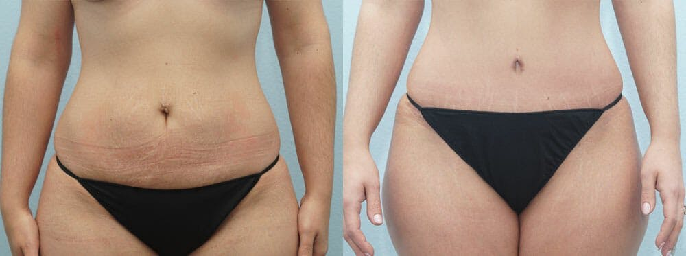 Tummy Tuck Gallery - Patient 49150813 - Image 1