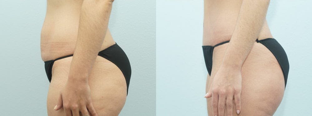 Tummy Tuck Gallery - Patient 49150813 - Image 3