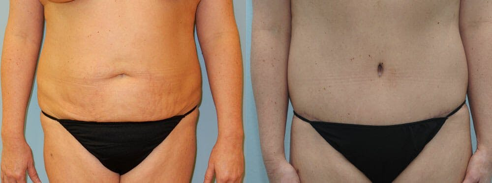 Tummy Tuck Gallery - Patient 49150814 - Image 1