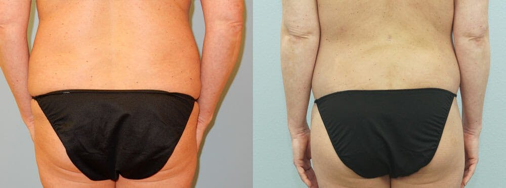 Tummy Tuck Gallery - Patient 49150814 - Image 2