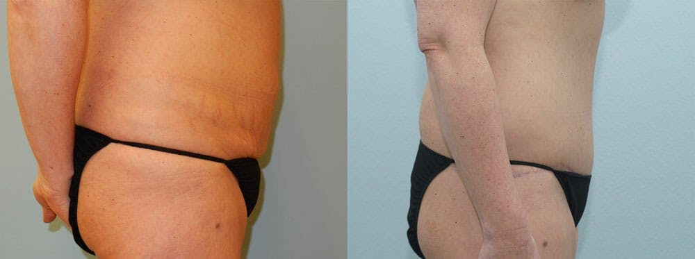 Tummy Tuck Gallery - Patient 49150814 - Image 3