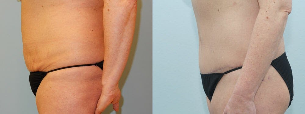 Tummy Tuck Gallery - Patient 49150814 - Image 4