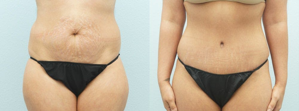 Tummy Tuck Gallery - Patient 49150816 - Image 1