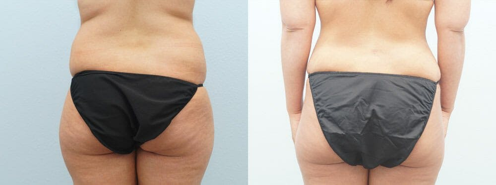 Tummy Tuck Gallery - Patient 49150816 - Image 2