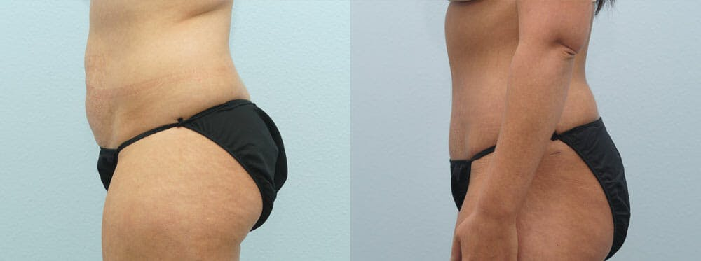 Tummy Tuck Gallery - Patient 49150816 - Image 3