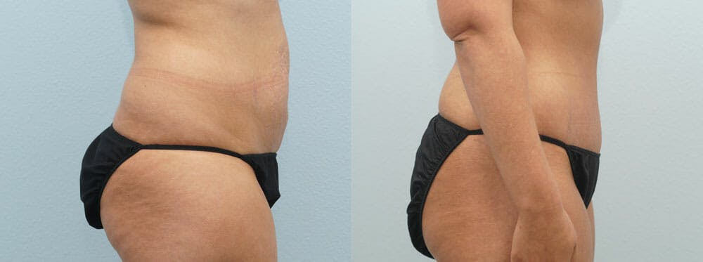 Tummy Tuck Gallery - Patient 49150816 - Image 4