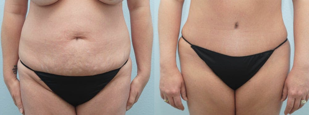 Tummy Tuck Gallery - Patient 49150818 - Image 1