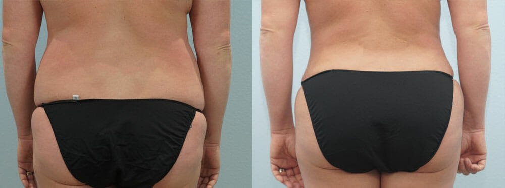 Tummy Tuck Gallery - Patient 49150818 - Image 2