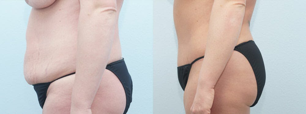 Tummy Tuck Gallery - Patient 49150818 - Image 3