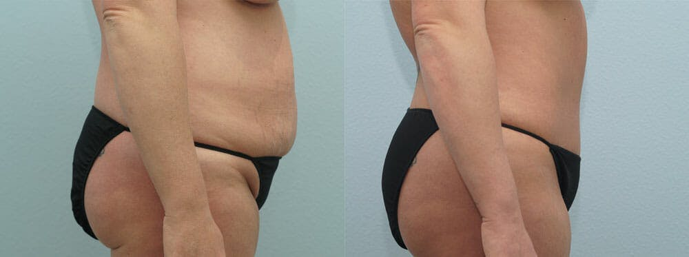 Tummy Tuck Gallery - Patient 49150818 - Image 4