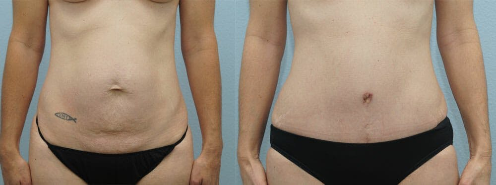Tummy Tuck Gallery - Patient 49150820 - Image 1