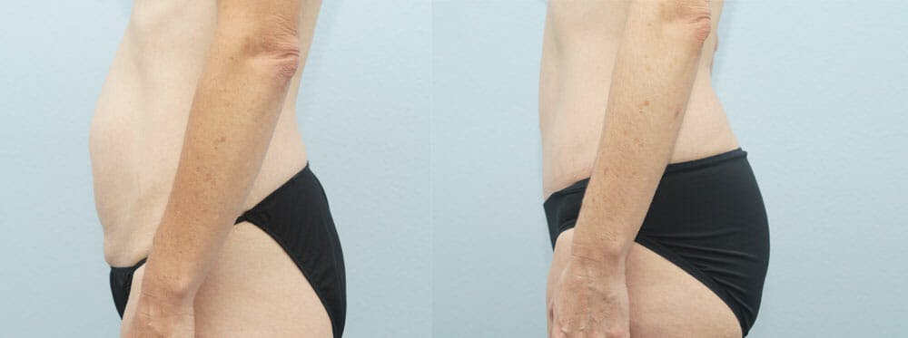 Tummy Tuck Gallery - Patient 49150820 - Image 2