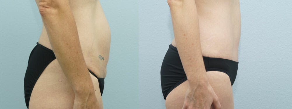 Tummy Tuck Gallery - Patient 49150820 - Image 3