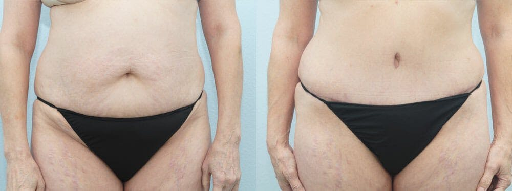 Tummy Tuck Gallery - Patient 49150821 - Image 1