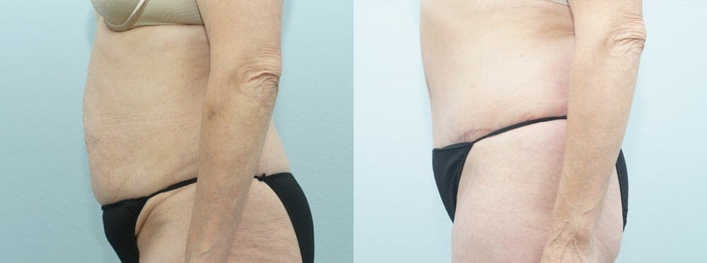 Tummy Tuck Gallery - Patient 49150821 - Image 2