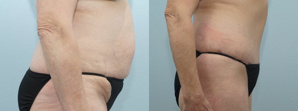 Tummy Tuck Gallery - Patient 49150821 - Image 3