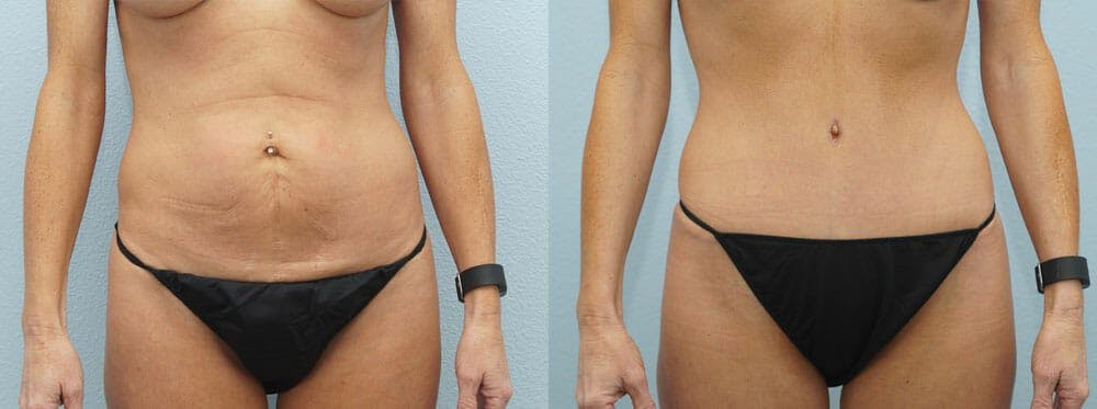 Tummy Tuck Gallery - Patient 49151498 - Image 1