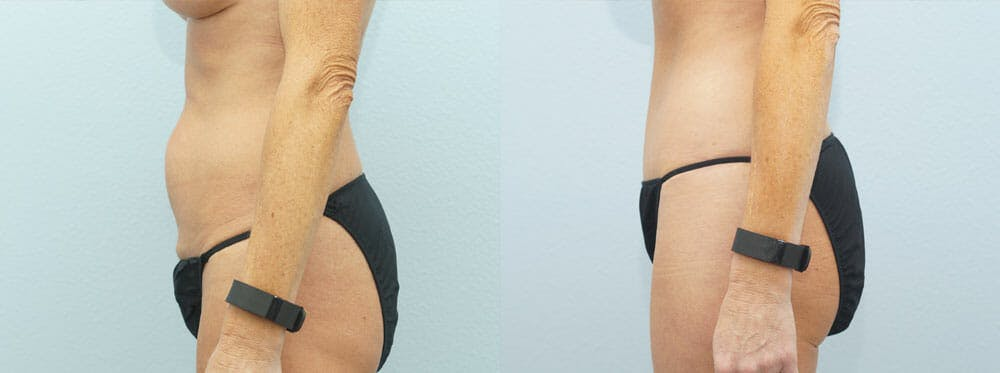 Tummy Tuck Gallery - Patient 49151498 - Image 2
