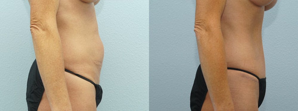 Tummy Tuck Gallery - Patient 49151498 - Image 3