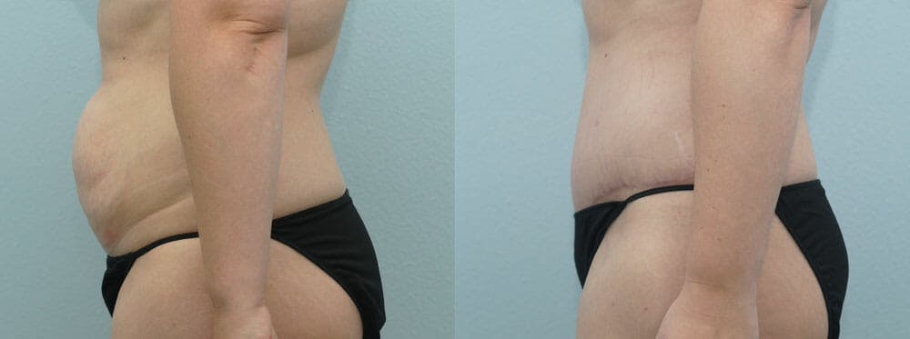 Tummy Tuck Gallery - Patient 49151499 - Image 2