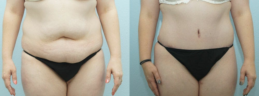 Tummy Tuck Gallery - Patient 49151502 - Image 1