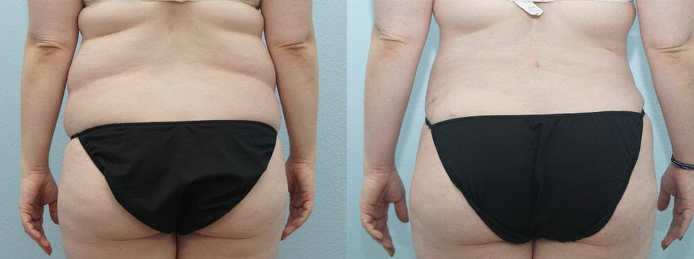Tummy Tuck Gallery - Patient 49151502 - Image 2