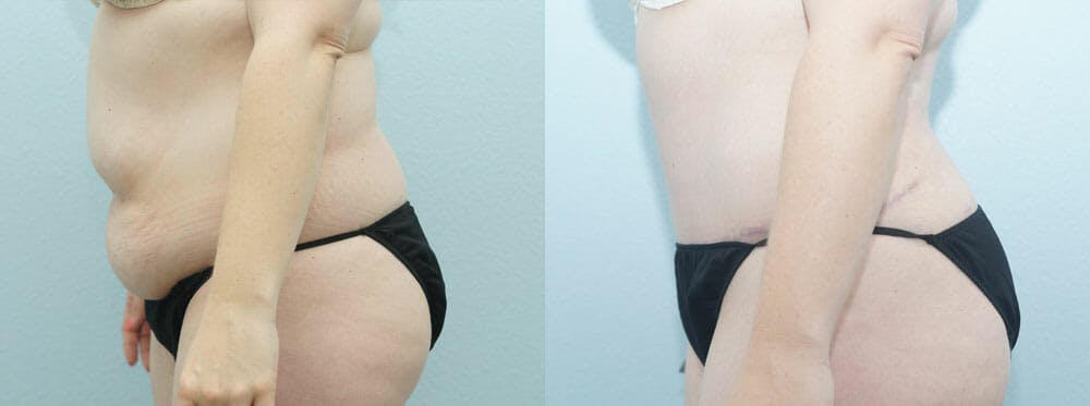 Tummy Tuck Gallery - Patient 49151502 - Image 3