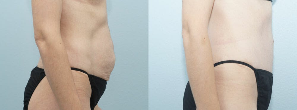 Tummy Tuck Gallery - Patient 49151503 - Image 3
