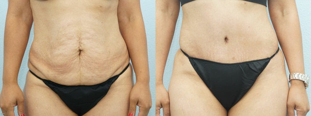 Tummy Tuck Gallery - Patient 49151504 - Image 1