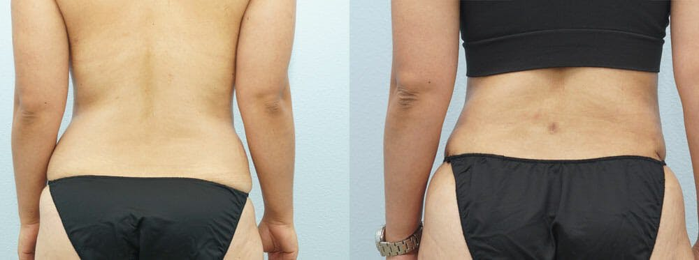 Tummy Tuck Gallery - Patient 49151504 - Image 2
