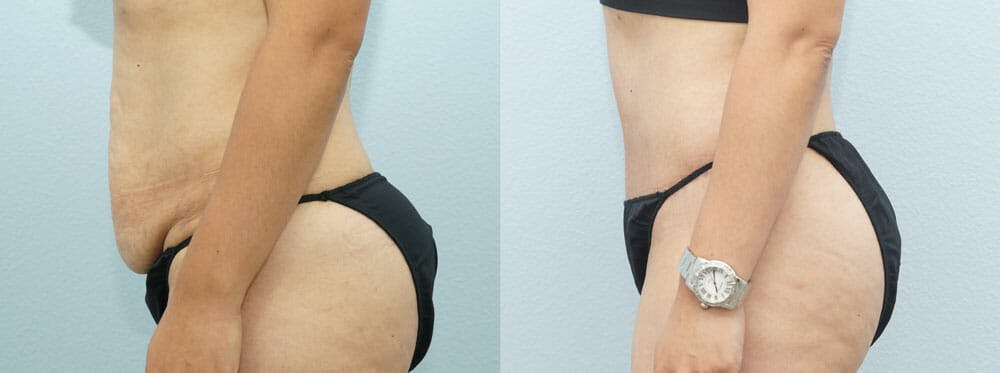 Tummy Tuck Gallery - Patient 49151504 - Image 3
